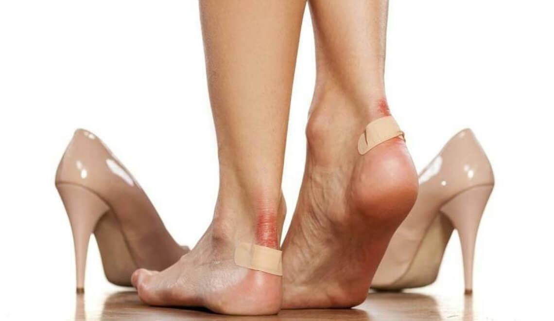 vesciche ai piedi come prevenire