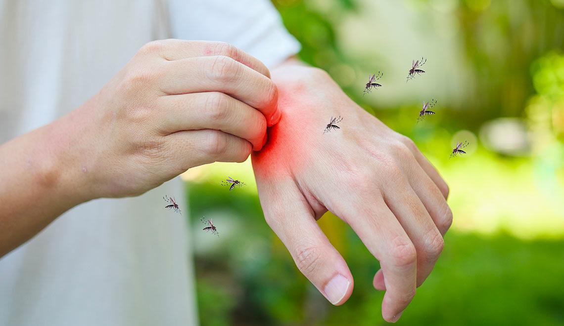 Puntura insetto: sintomi e rimedi